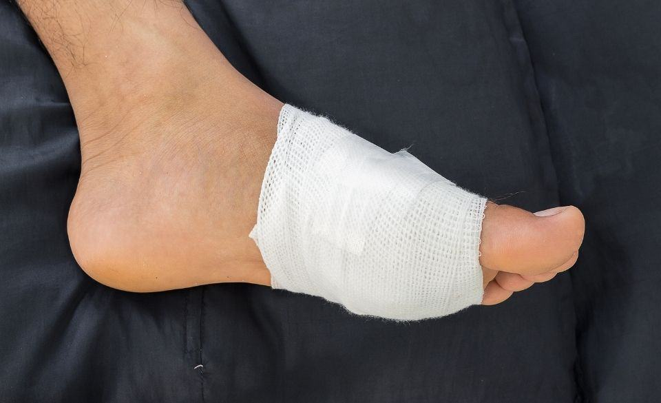 Top of Foot Pain After Running