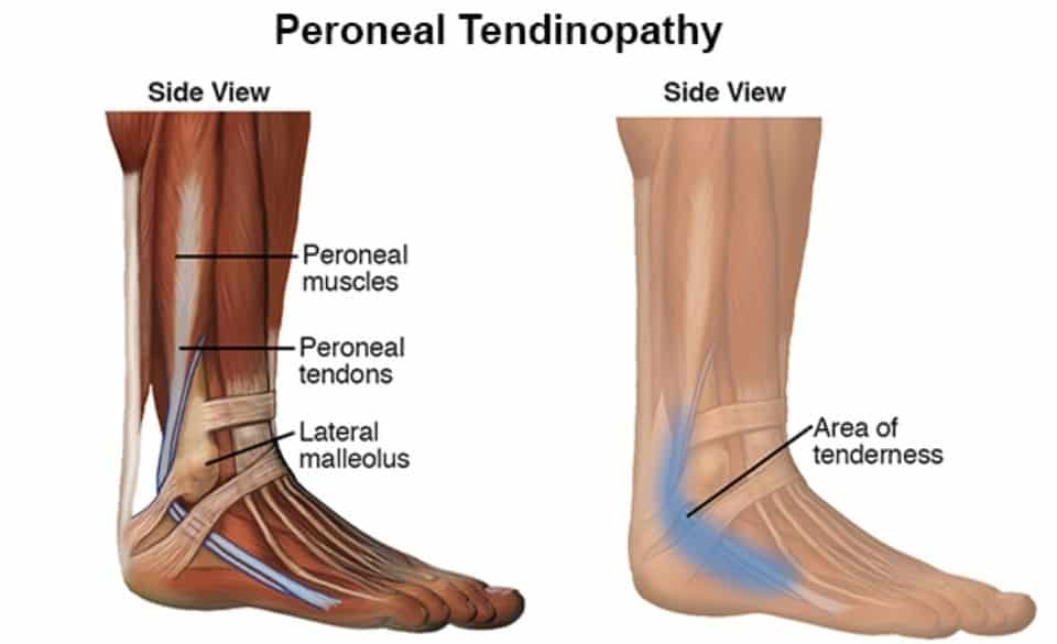 Peroneal tendonitis and cleat position